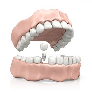 Learn about the surgery for dental implants in Boca Raton.