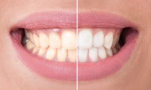 cosmetic dentist in boca raton