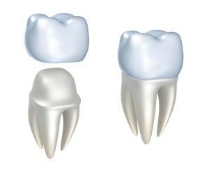 High-quality dental crowns in Boca Raton.